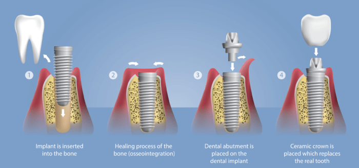 A full Guide on Dental Implant Procedure by George Pegios