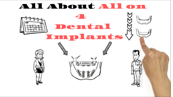 All You Need To Know About All on 4 Dental Implants