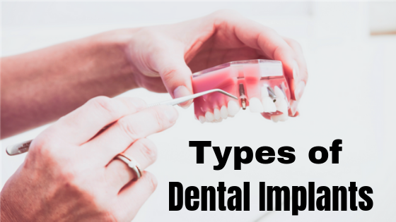 Types of Dental Implants in India