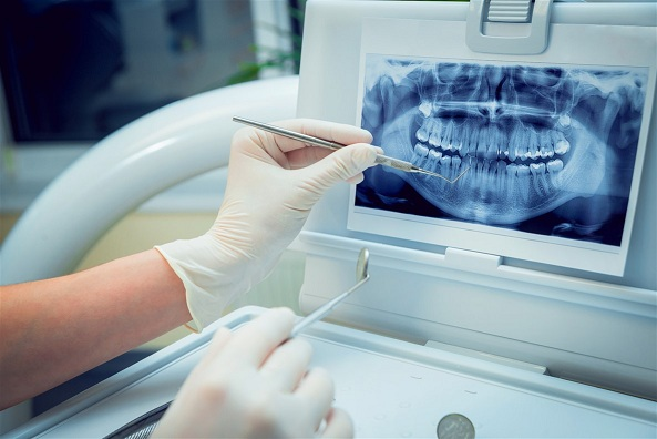 Dental Imaging Technology Market – Industry Analysis, Size, Share, Growth, Trends, and Forecast till 2025