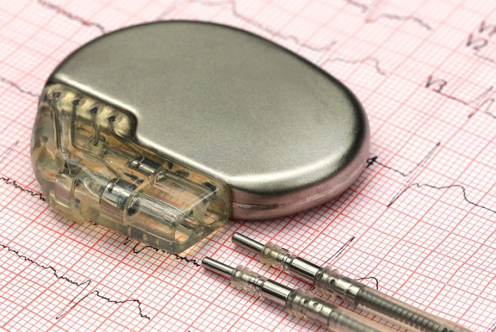 Dissimilar Trends and Developments across Global Cardiac Pacemakers Market Outlook: Ken Research
