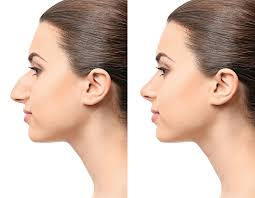 Nose Reshaping (Rhinoplasty) Without Surgery