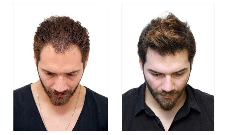 Is Hair Transplant Permanent and for How Long?