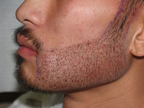 Beard Transplant- Possible Complications and Side Effects