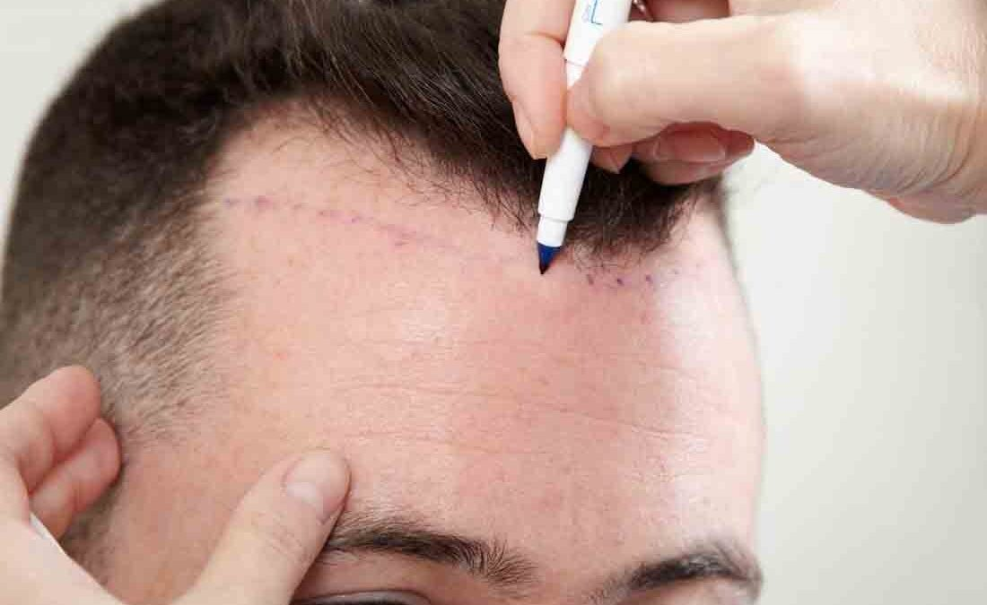 What Are The Advantages Of Getting Hair Transplant In India?