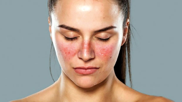 What is lupus and its causes?