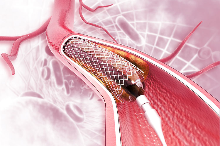 Which is the best hospital in Gurgaon for angioplasty?