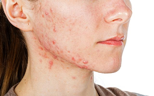 How To Get Rid Of Acne With Ayurveda?